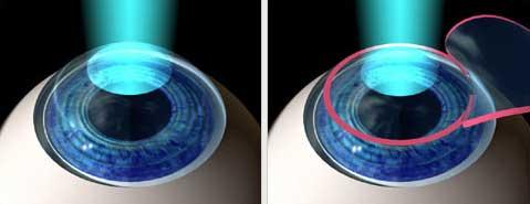 Son las principales técnicas de cirugía refractiva con láser