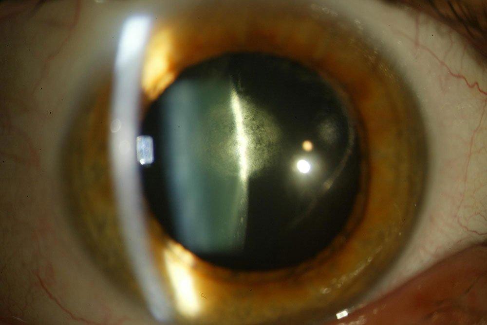 Cirugía de Cataratas - Catarata subcapsular posterior.