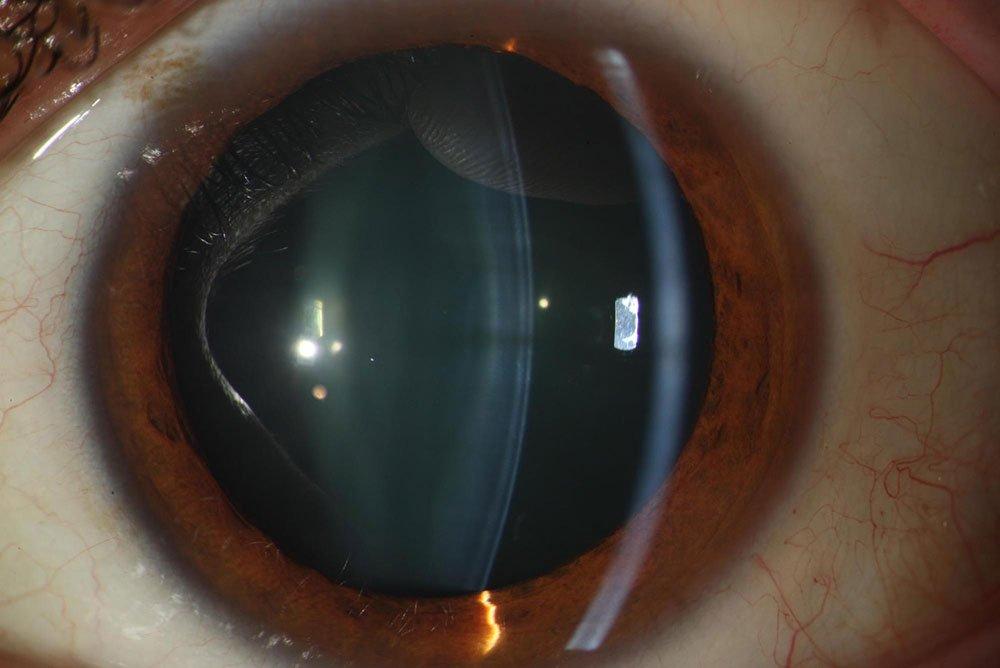 Cirugía de cataratas - Cristalino transparente.