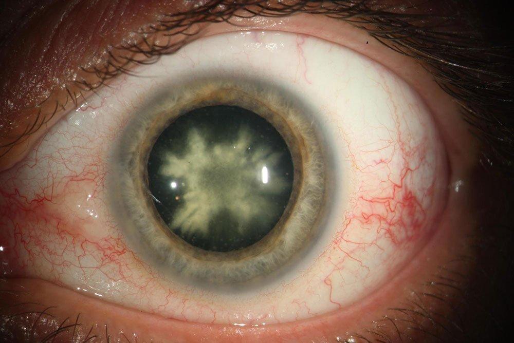 Natural Eye Correction