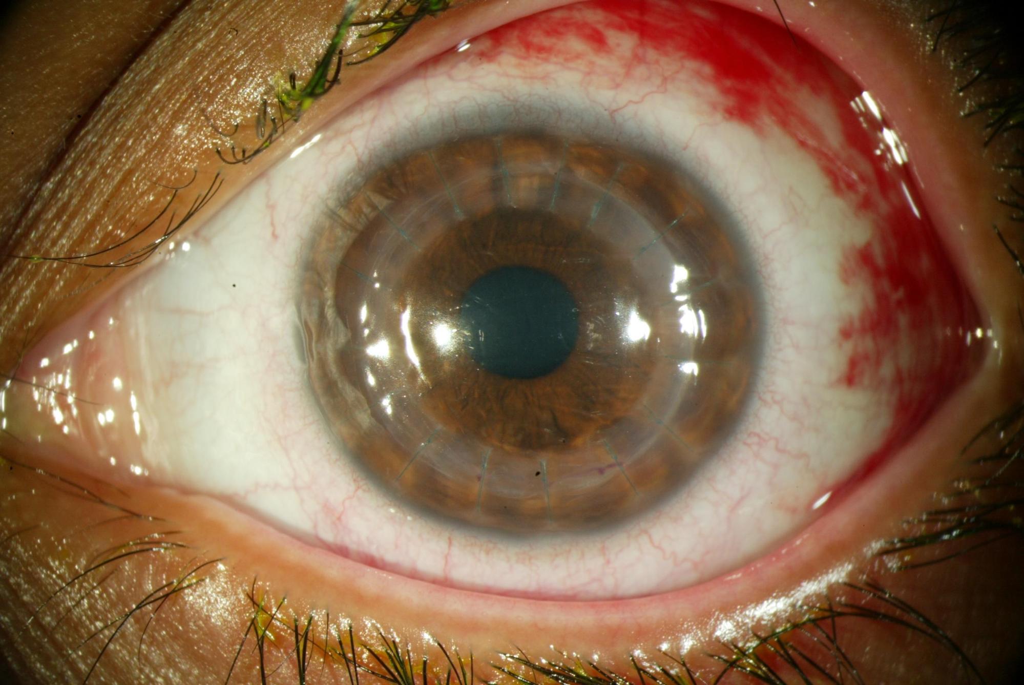 Aspecto de un ojo operado de trasplante de córnea - tratamiento del queratocono