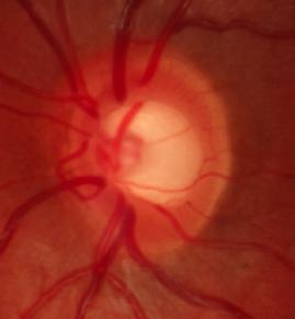 Aspecto de un nervio de un paciente con glaucoma