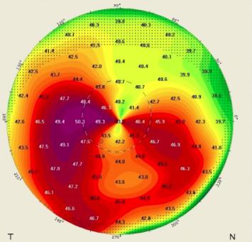 tratamiento del queratocono - tipología de un paciente con queratocono