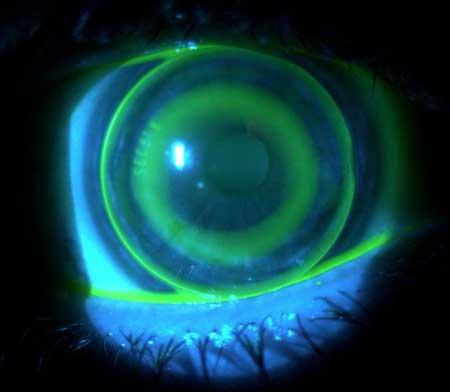 Aspecto de una lentilla en el ojo