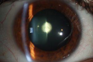 Se observa una mancha blanquecina en la parte posterior del cristalino que corresponde a la catarata polar posterior. Es una de las patologías mas importantes de la oftalmología pediátrica.