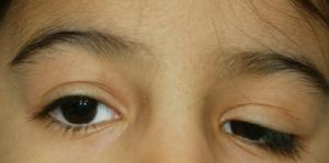 Caída del párpado superior izquierdo afectando al eje visual del paciente