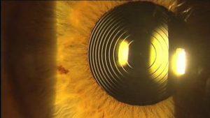 lentes intraoculares garcia de oteyza clinica barcelona