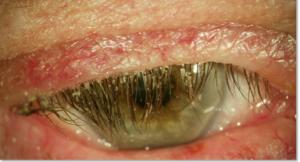 ojo seco blefaritis tratamiento barcelona