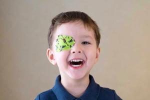 ambliopía u ojo vago oftalmologia barcelona