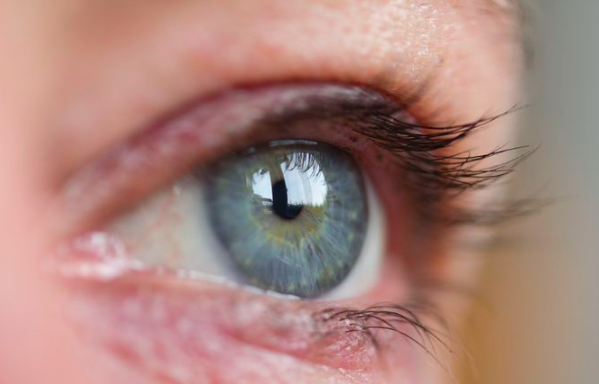 ojo seco barcelona clinica garcia de oteyza oftalmologia
