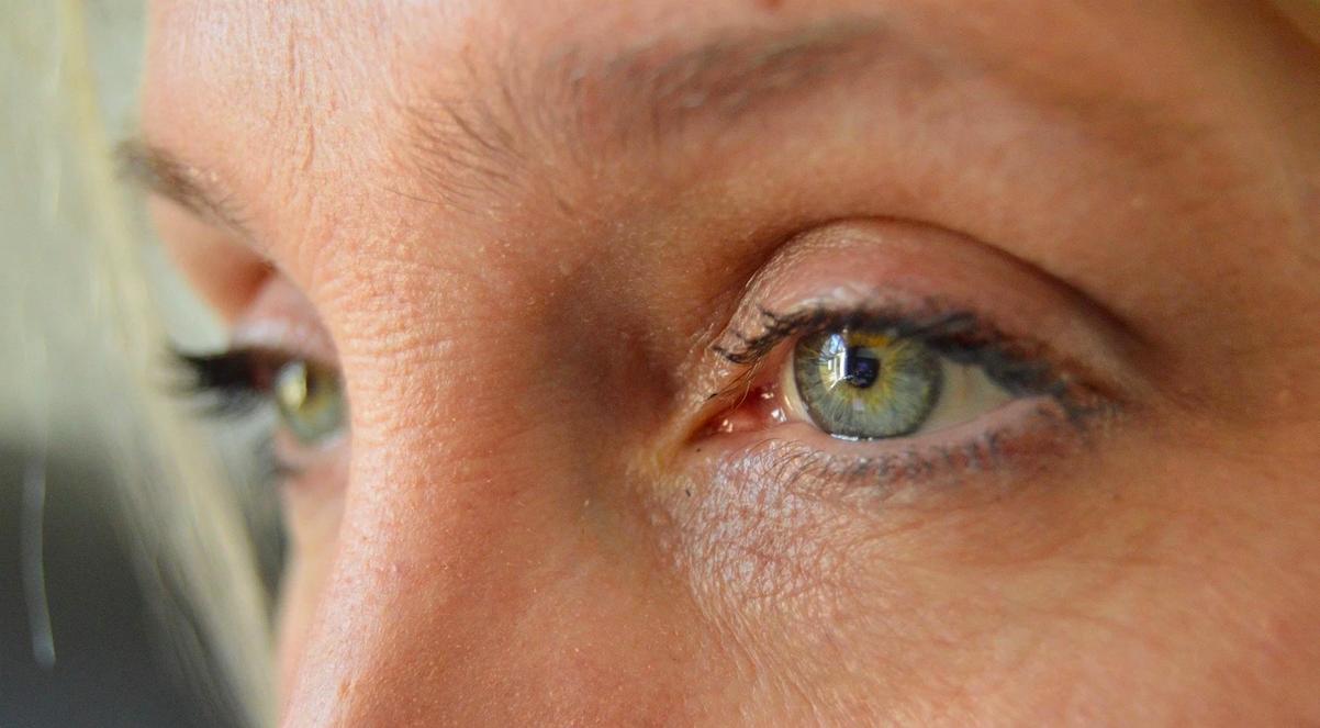 ¿Por qué aparece la sequedad ocular o síndrome de ojo seco?