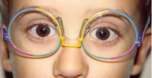 montura mal adaptada gafas para niños 2