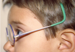 montura mal adaptada gafas para niños