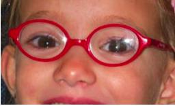 gafas para niños oftalmologia barcelona