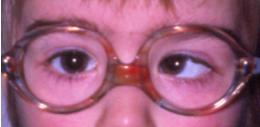 gafas para niños oftalmologo barcelona