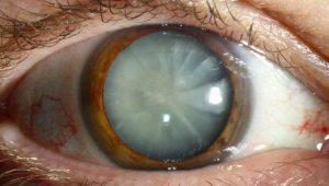 La operación de cataratas barcelona oftalmologo