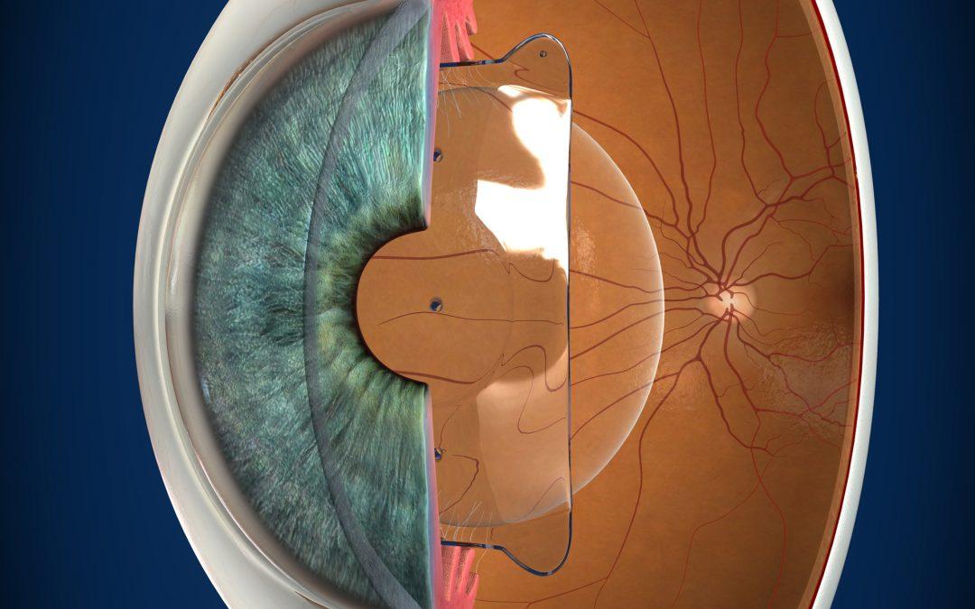 ICL implantada en el ojo
